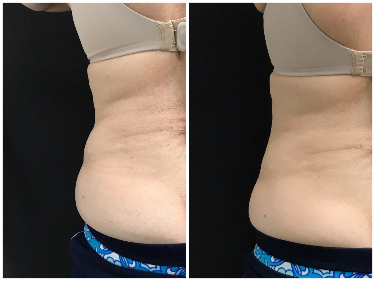 12 weeks after two WarmSculpting treatments